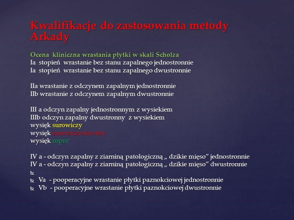Kwalifikacje do zastosowania metody Arkady Ocena kliniczna wrastania płytki w skali Scholza Ia stopień wrastanie bez stanu zapalnego jednostronnie Ia