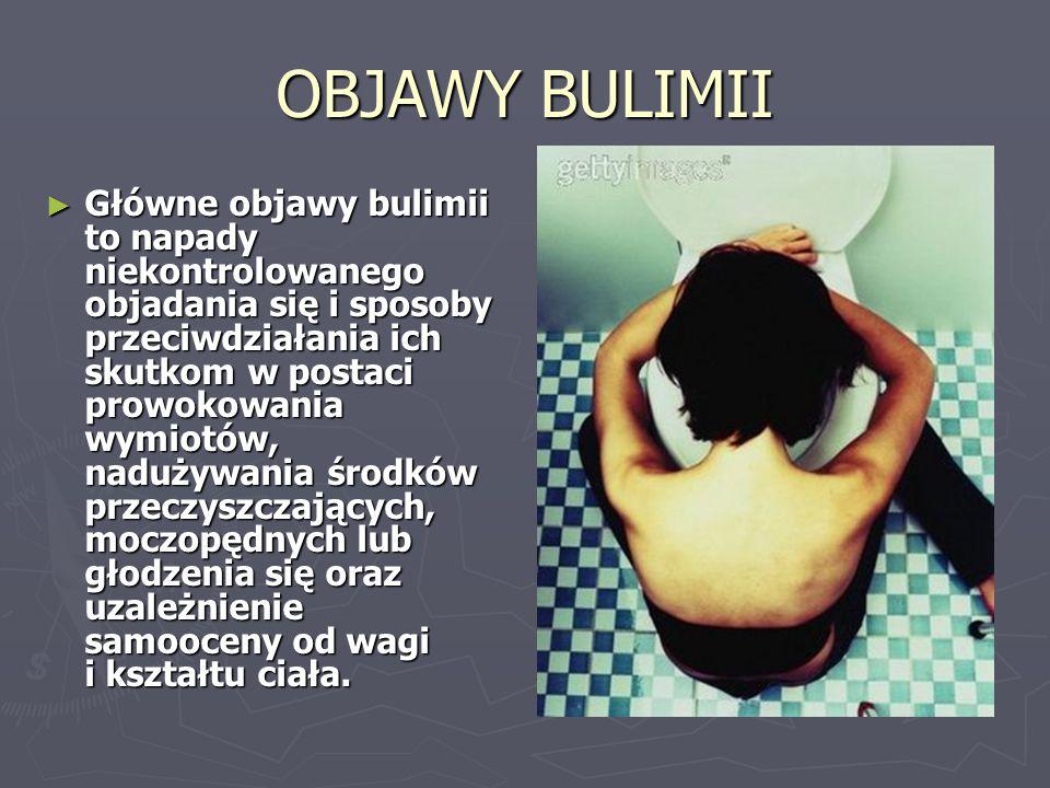 ► Bulimia występuje później niż jadłowstręt psychiczny, najczęściej między 18.