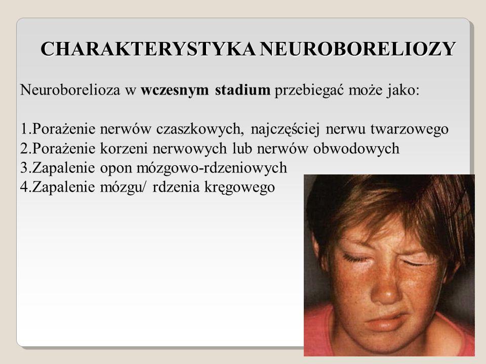 CHARAKTERYSTYKA NEUROBORELIOZY CHARAKTERYSTYKA NEUROBORELIOZY Neuroborelioza w wczesnym stadium przebiegać może jako: 1.Porażenie nerwów czaszkowych, najczęściej nerwu twarzowego 2.Porażenie korzeni nerwowych lub nerwów obwodowych 3.Zapalenie opon mózgowo-rdzeniowych 4.Zapalenie mózgu/ rdzenia kręgowego