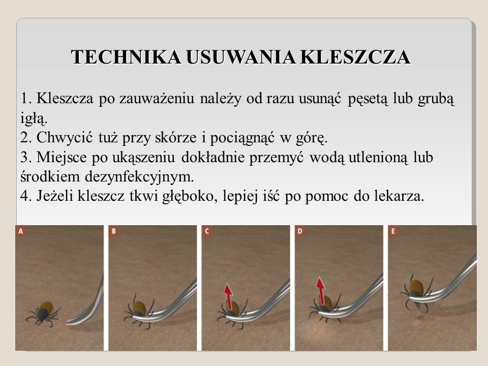 TECHNIKA USUWANIA KLESZCZA TECHNIKA USUWANIA KLESZCZA 1.