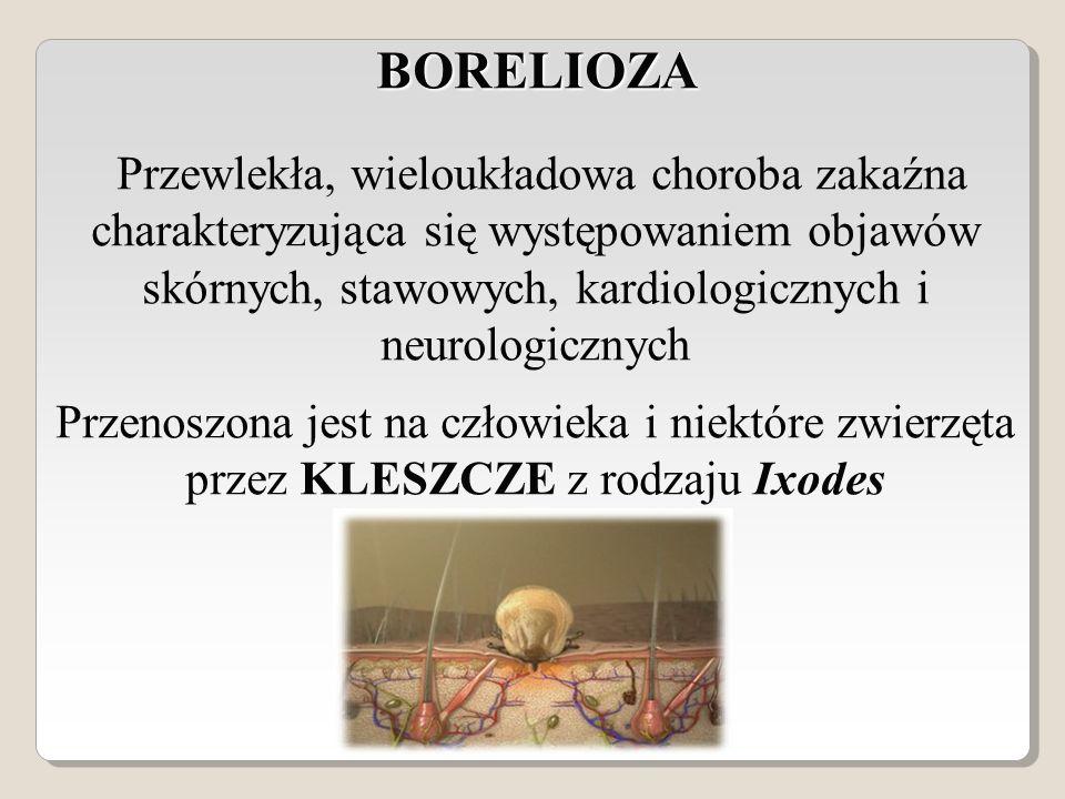 BORELIOZA BORELIOZA Przewlekła, wieloukładowa choroba zakaźna charakteryzująca się występowaniem objawów skórnych, stawowych, kardiologicznych i neurologicznych Przenoszona jest na człowieka i niektóre zwierzęta przez KLESZCZE z rodzaju Ixodes