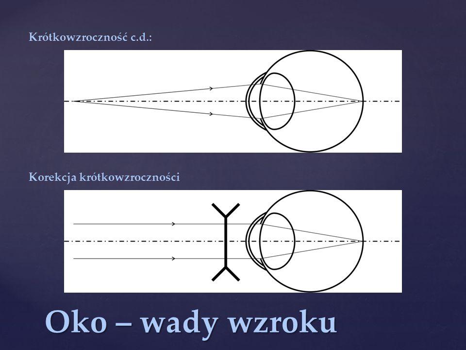 Oko – wady wzroku Krótkowzroczność c.d.: Korekcja krótkowzroczności