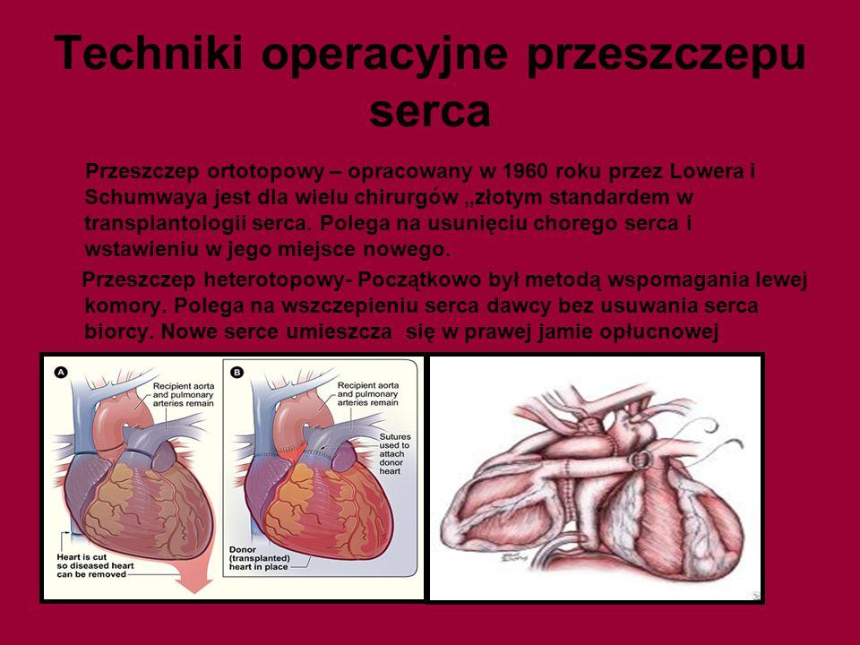 """Techniki operacyjne przeszczepu serca Przeszczep ortotopowy – opracowany w 1960 roku przez Lowera i Schumwaya jest dla wielu chirurgów """"złotym standar"""