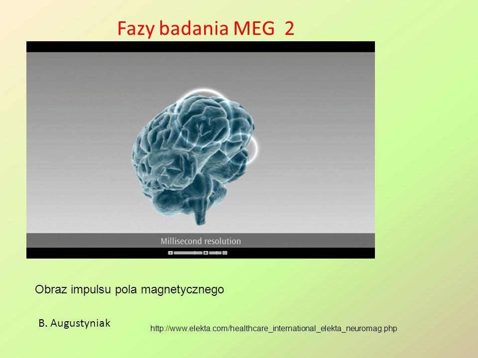 Fazy badania MEG 2 http://www.elekta.com/healthcare_international_elekta_neuromag.php B. Augustyniak Obraz impulsu pola magnetycznego