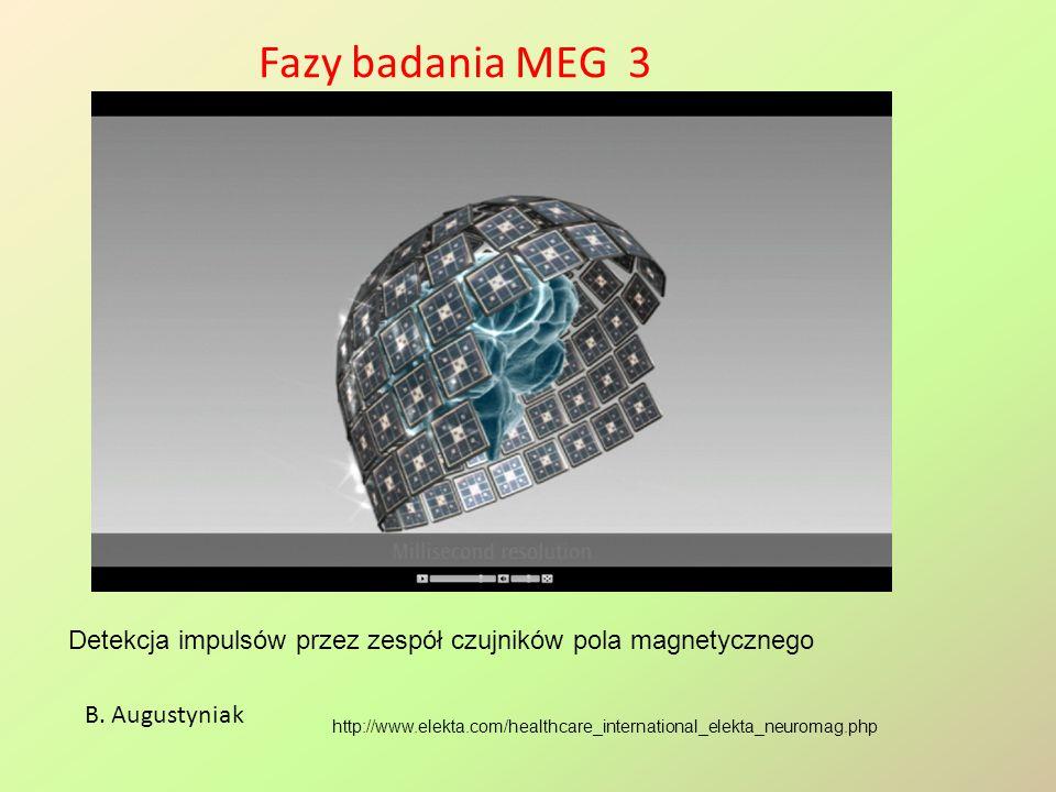 Fazy badania MEG 3 http://www.elekta.com/healthcare_international_elekta_neuromag.php B. Augustyniak Detekcja impulsów przez zespół czujników pola mag