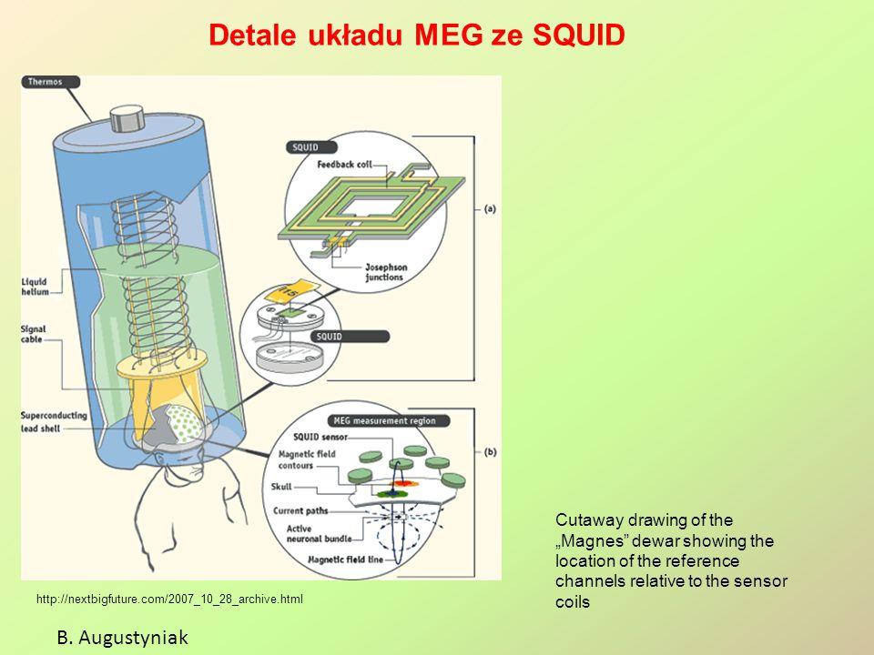 "Detale układu MEG ze SQUID B. Augustyniak http://nextbigfuture.com/2007_10_28_archive.html Cutaway drawing of the ""Magnes"" dewar showing the location"