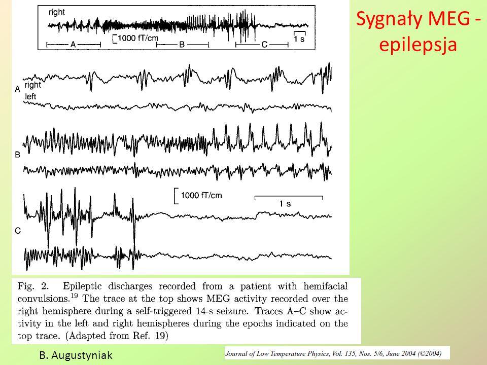 Sygnały z czujników pola magnetycznego B.