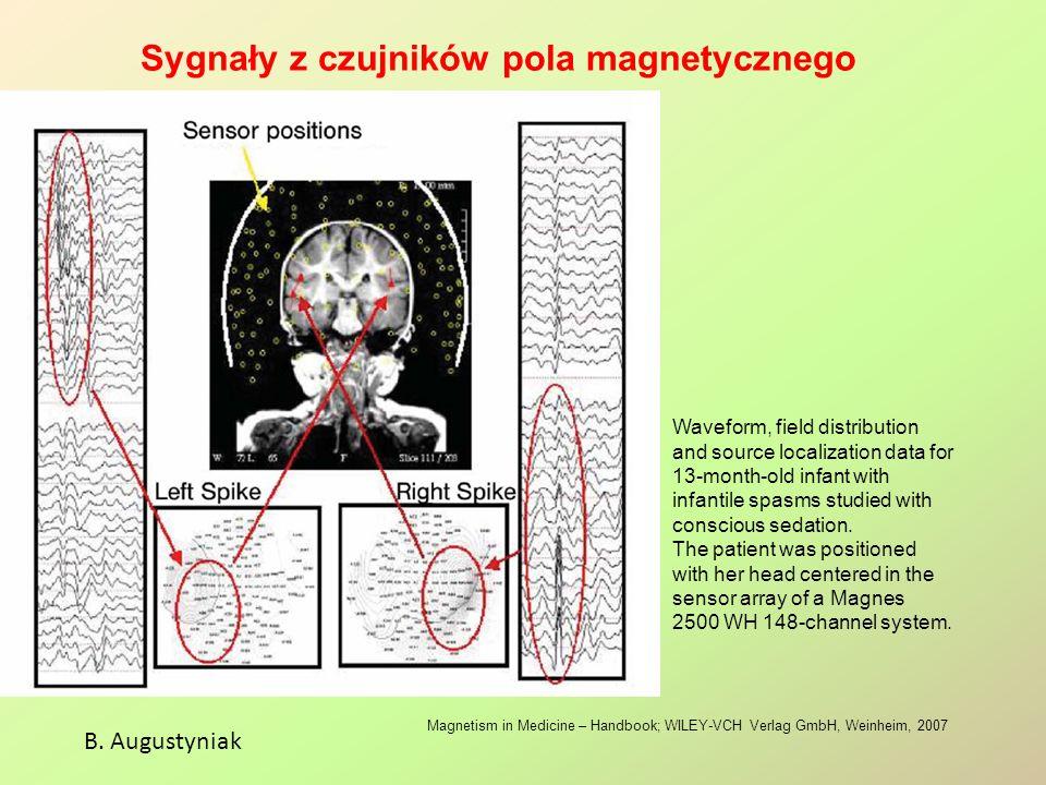Sygnały z czujników pola magnetycznego B. Augustyniak Magnetism in Medicine – Handbook; WILEY-VCH Verlag GmbH, Weinheim, 2007 Waveform, field distribu
