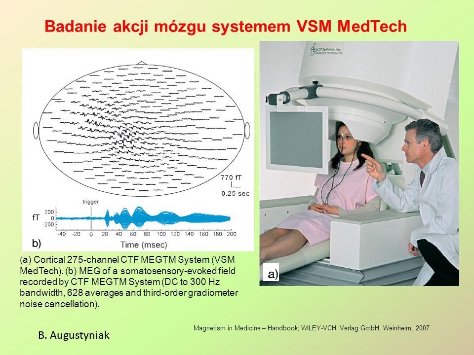 Badanie akcji mózgu systemem VSM MedTech B. Augustyniak Magnetism in Medicine – Handbook; WILEY-VCH Verlag GmbH, Weinheim, 2007 (a) Cortical 275-chann