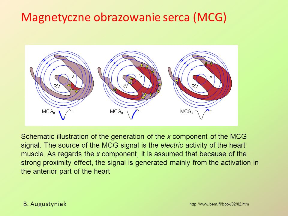 Magnetyczne obrazowanie serca (MCG) B. Augustyniak http://www.bem.fi/book/02/02.htm Schematic illustration of the generation of the x component of the