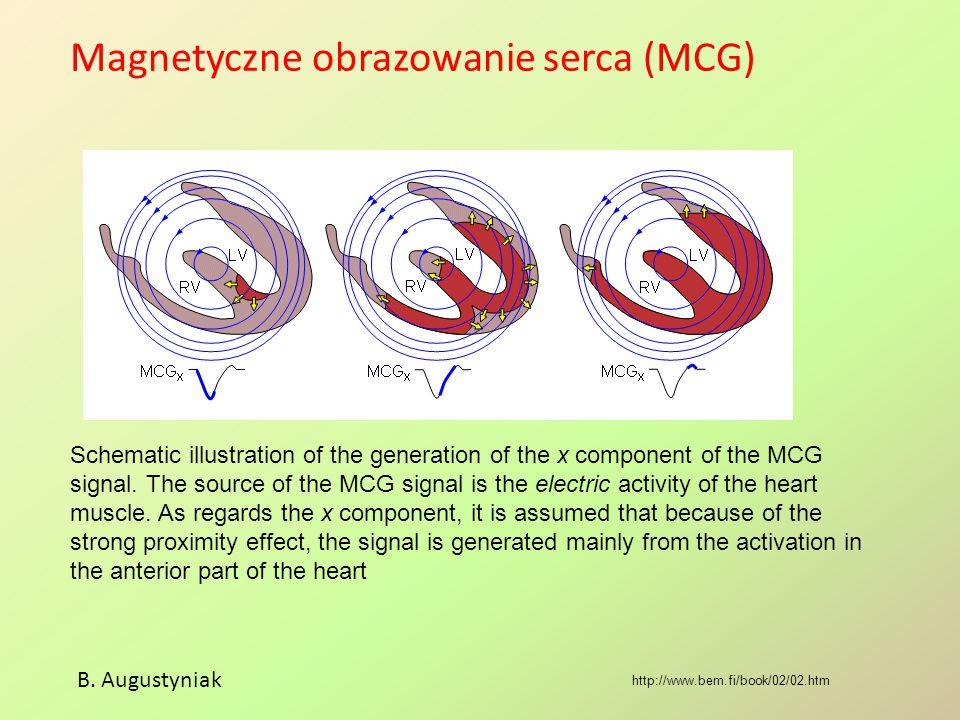 Magnetyczne obrazowanie serca (MCG) B.