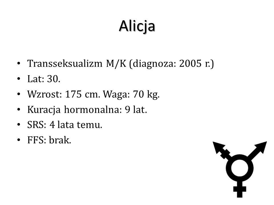 Alicja Transseksualizm M/K (diagnoza: 2005 r.) Lat: 30.