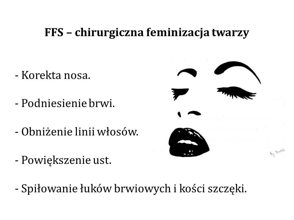 FFS – chirurgiczna feminizacja twarzy - Korekta nosa.