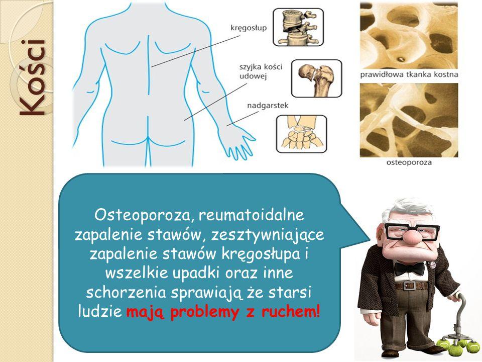 Kości Osteoporoza, reumatoidalne zapalenie stawów, zesztywniające zapalenie stawów kręgosłupa i wszelkie upadki oraz inne schorzenia sprawiają że starsi ludzie mają problemy z ruchem!