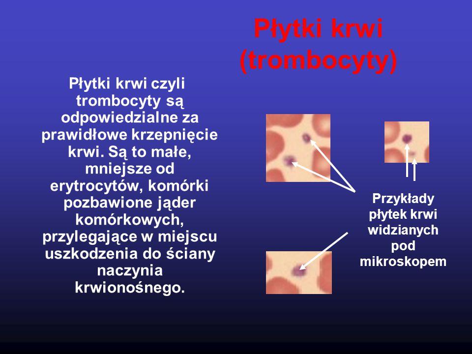 Płytki krwi (trombocyty) Płytki krwi czyli trombocyty są odpowiedzialne za prawidłowe krzepnięcie krwi. Są to małe, mniejsze od erytrocytów, komórki p