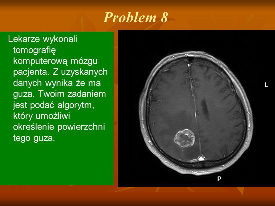 Problem 8 Lekarze wykonali tomografię komputerową mózgu pacjenta. Z uzyskanych danych wynika że ma guza. Twoim zadaniem jest podać algorytm, który umo
