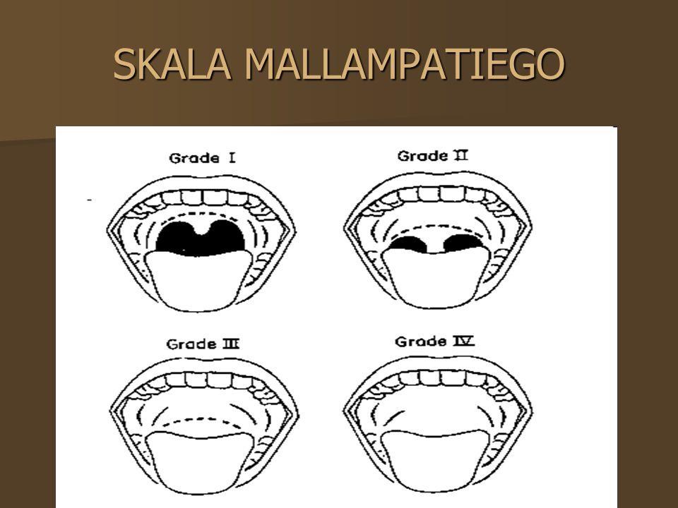 SKALA WILSONA Masa ciała Masa ciała Ruchomość kręgosłupa w odcinku szyjnym Ruchomość kręgosłupa w odcinku szyjnym Ruchomość w stawach skroniowo- żuchwowych Ruchomość w stawach skroniowo- żuchwowych Cofnięta broda Cofnięta broda Wystające zęby Wystające zęby