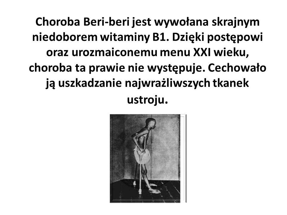 Choroba Beri-beri jest wywołana skrajnym niedoborem witaminy B1. Dzięki postępowi oraz urozmaiconemu menu XXI wieku, choroba ta prawie nie występuje.