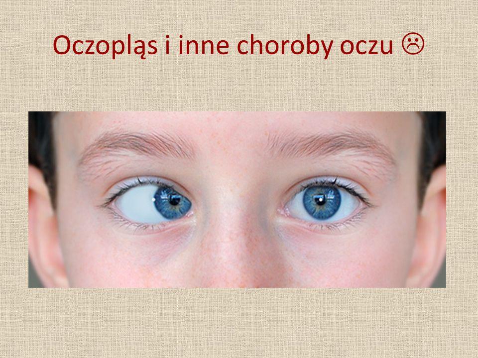 Oczopląs i inne choroby oczu 