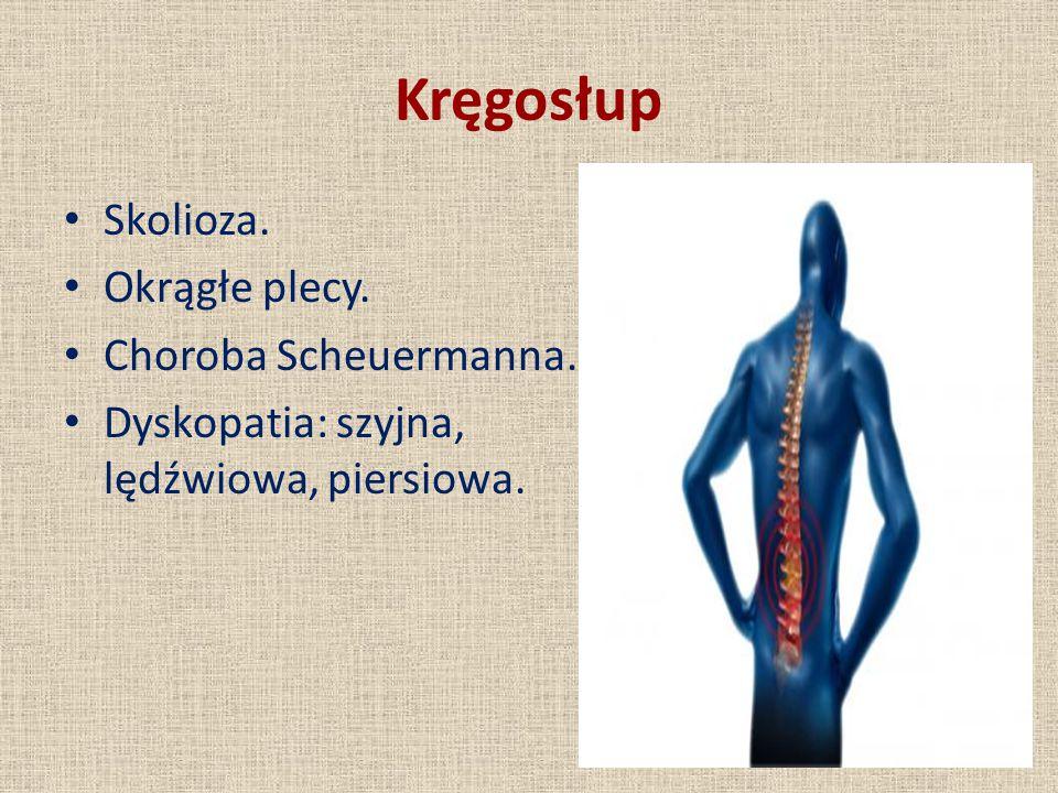Kręgosłup Skolioza. Okrągłe plecy. Choroba Scheuermanna. Dyskopatia: szyjna, lędźwiowa, piersiowa.