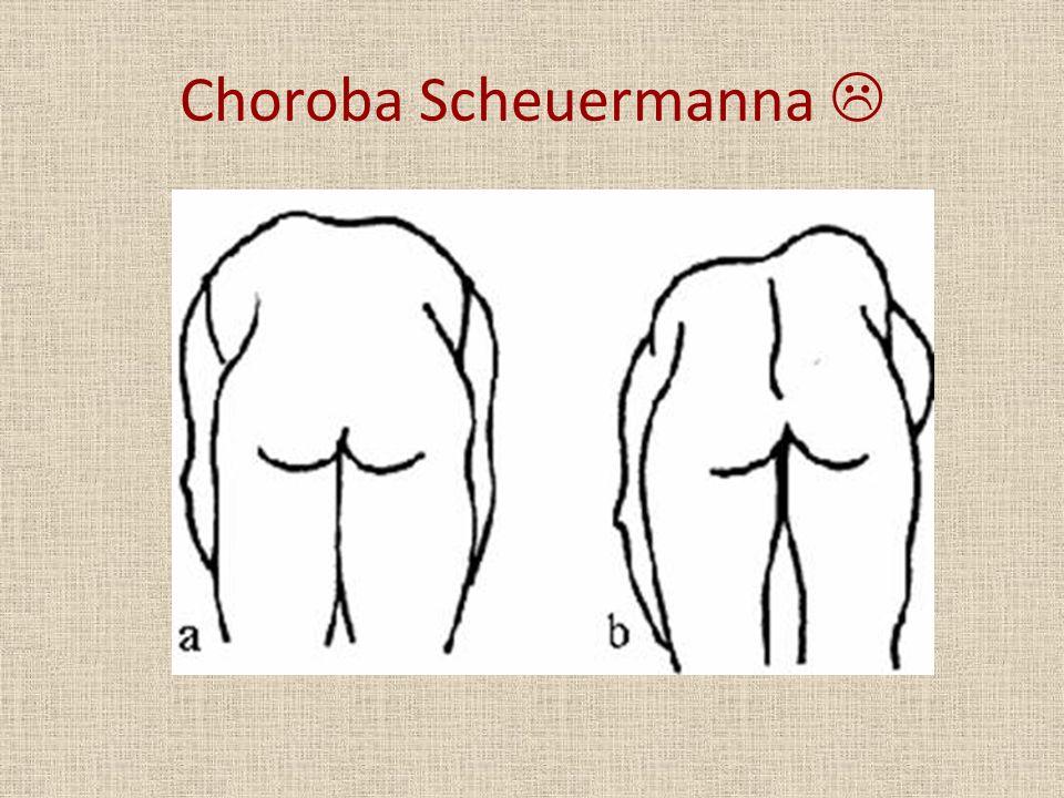 Choroba Scheuermanna 