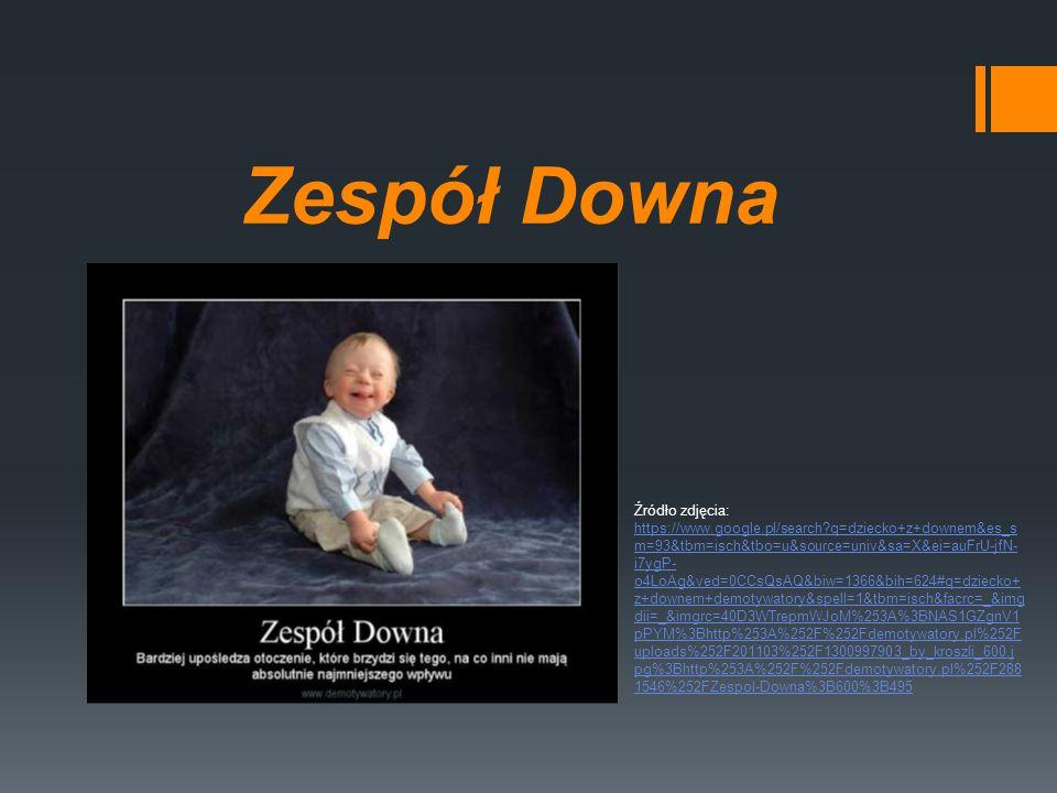 Zespół Downa Źródło zdjęcia: https://www.google.pl/search?q=dziecko+z+downem&es_s m=93&tbm=isch&tbo=u&source=univ&sa=X&ei=auFrU-jfN- i7ygP- o4LoAg&ved