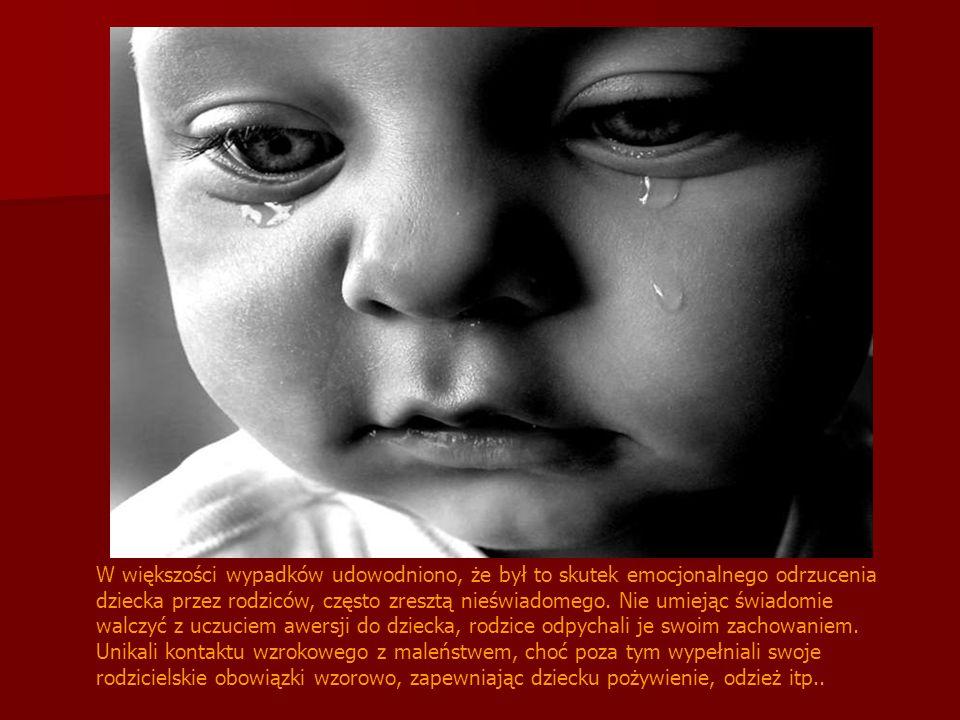 Syndrom zatrzymania rozwoju Choroba ta występuje między 6 a 12 miesiącem życia. Dziecko nagle przestaje się rozwijać. Często przestaje jeść, rosnąć, z