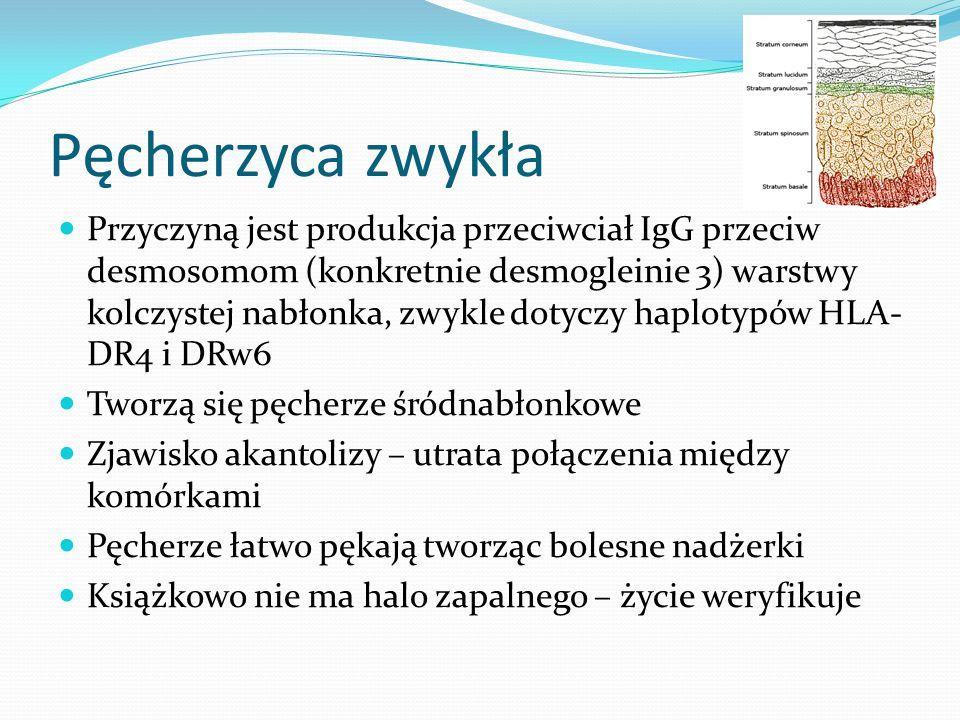 Pęcherzyca zwykła Przyczyną jest produkcja przeciwciał IgG przeciw desmosomom (konkretnie desmogleinie 3) warstwy kolczystej nabłonka, zwykle dotyczy