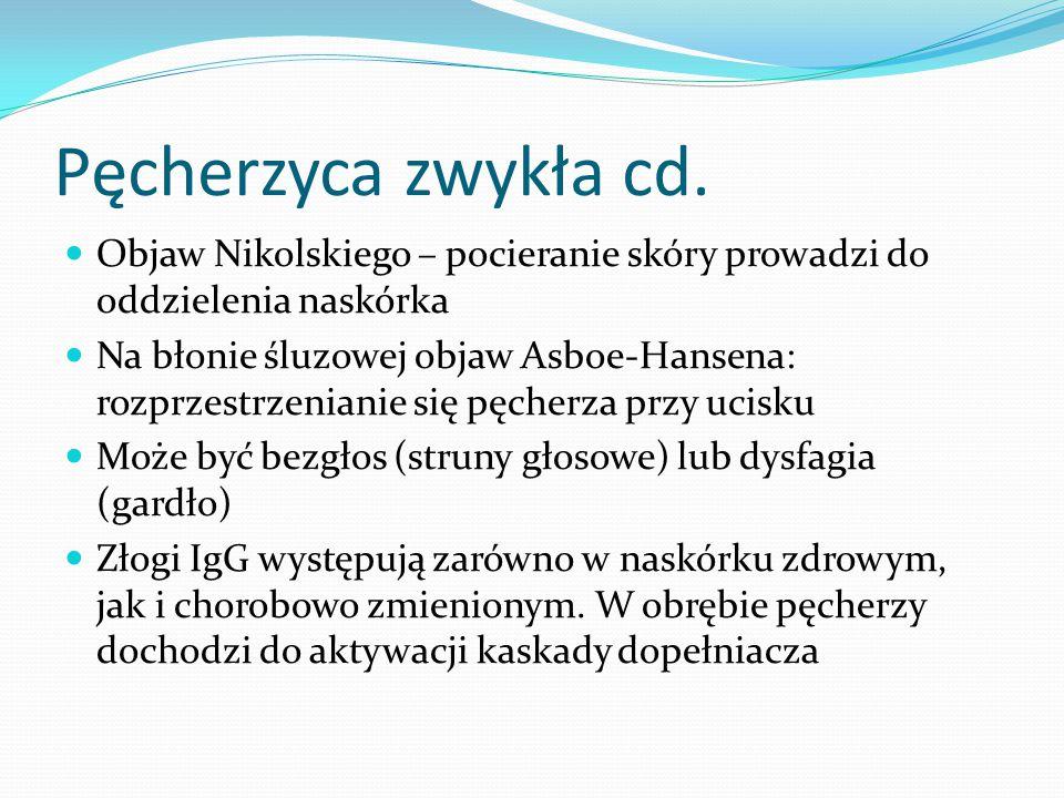 Pęcherzyca zwykła cd. Objaw Nikolskiego – pocieranie skóry prowadzi do oddzielenia naskórka Na błonie śluzowej objaw Asboe-Hansena: rozprzestrzenianie