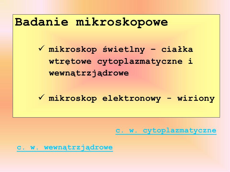 Badanie mikroskopowe mikroskop świetlny – ciałka wtrętowe cytoplazmatyczne i wewnątrzjądrowe mikroskop elektronowy - wiriony c. w. cytoplazmatyczne c.