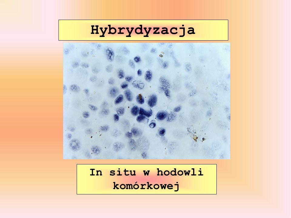 Hybrydyzacja In situ w hodowli komórkowej