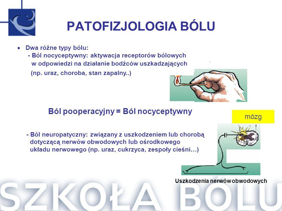 PATOFIZJOLOGIA BÓLU - Ból neuropatyczny: związany z uszkodzeniem lub chorobą dotyczącą nerwów obwodowych lub ośrodkowego układu nerwowego (np. uraz, c