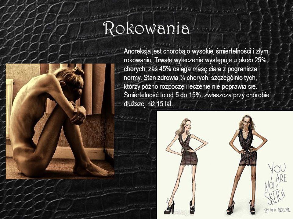 Rokowania Anoreksja jest chorobą o wysokiej śmiertelności i złym rokowaniu. Trwałe wyleczenie występuje u około 25% chorych, zaś 45% osiąga masę ciała
