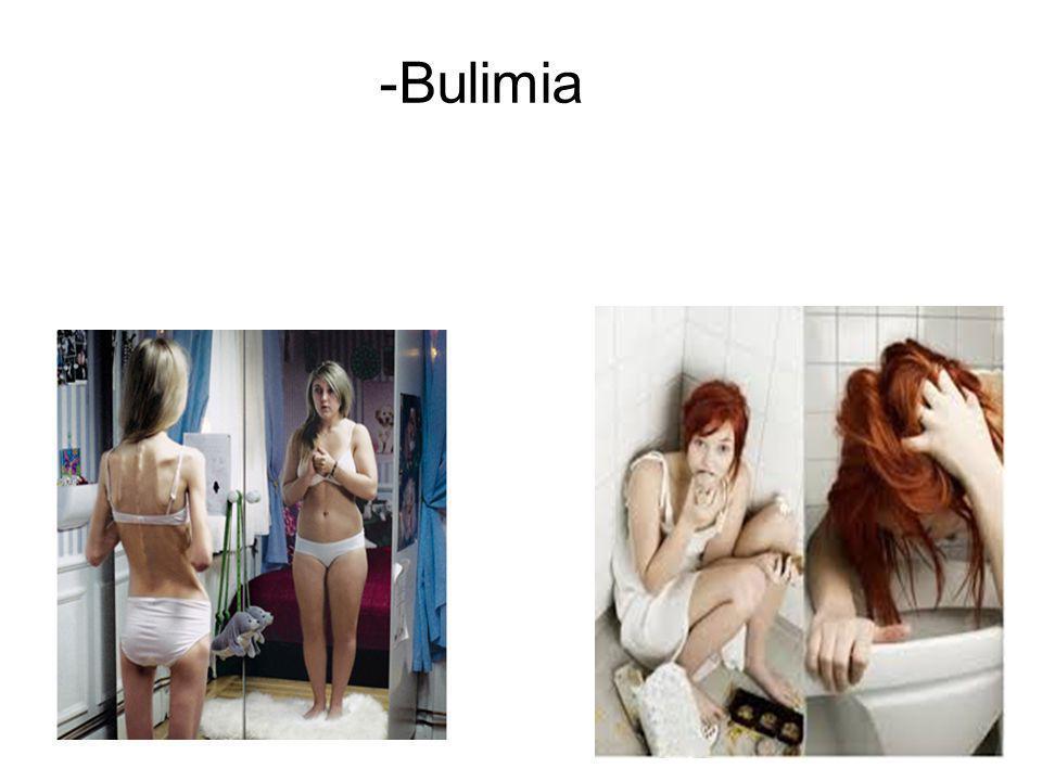 -Bulimia