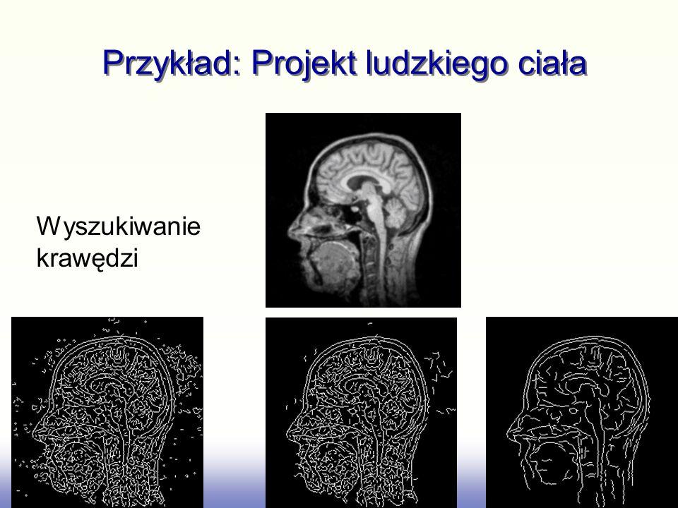 Przykład: Projekt ludzkiego ciała Wyszukiwanie krawędzi