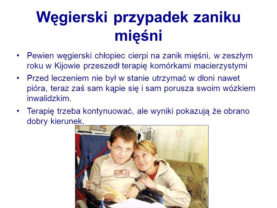 Węgierski przypadek zaniku mięśni Pewien węgierski chłopiec cierpi na zanik mięśni, w zeszłym roku w Kijowie przeszedł terapię komórkami macierzystymi Przed leczeniem nie był w stanie utrzymać w dłoni nawet pióra, teraz zaś sam kąpie się i sam porusza swoim wózkiem inwalidzkim.