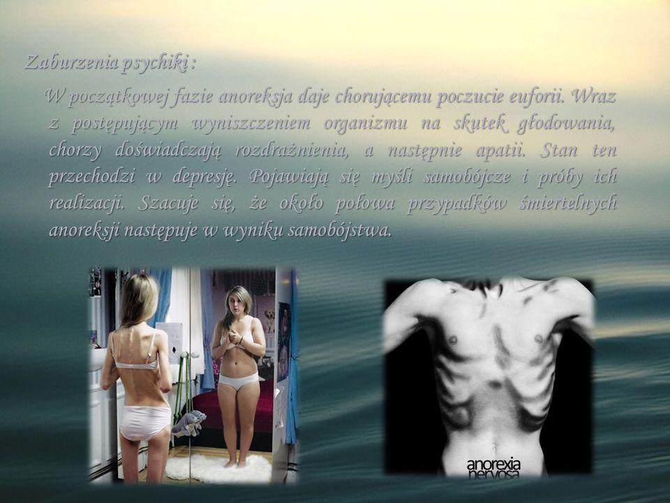 Zaburzenia psychiki : W początkowej fazie anoreksja daje chorującemu poczucie euforii. Wraz z postępującym wyniszczeniem organizmu na skutek głodowani