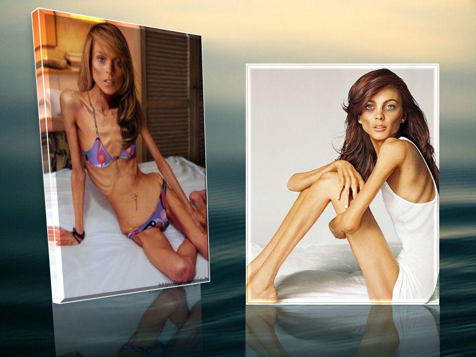 Anoreksja Pojęcie Anoreksji : Inaczej jadłowstręt psychiczny.