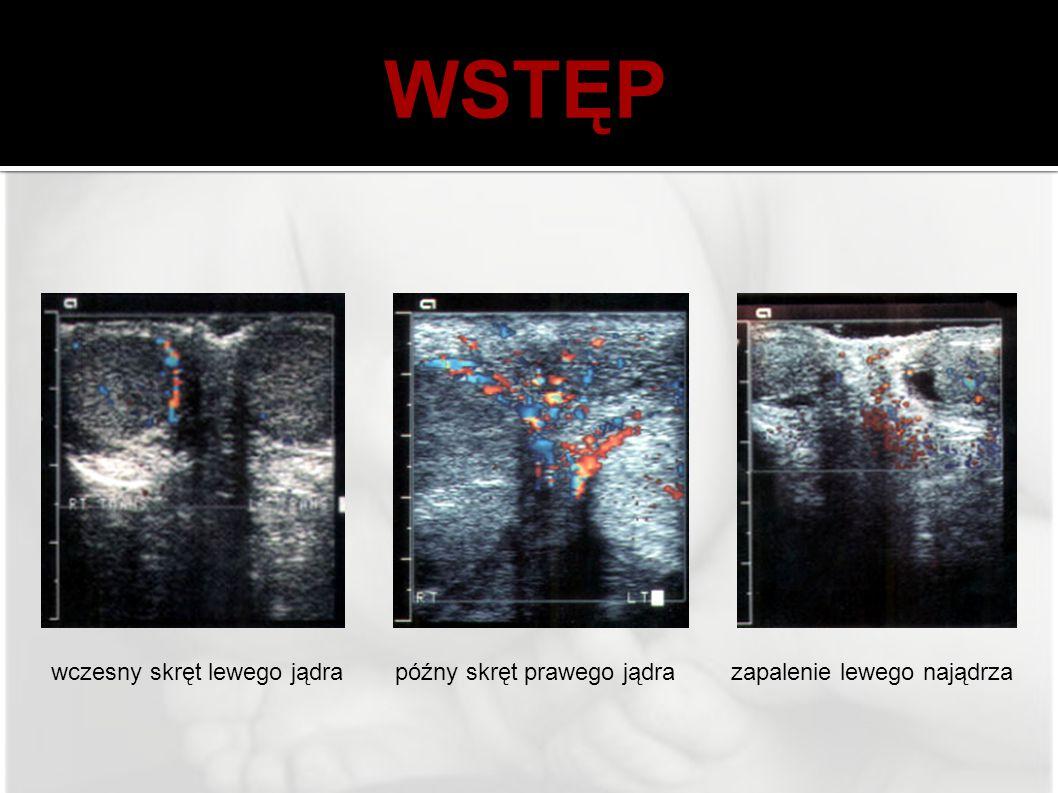 WSTĘP wczesny skręt lewego jądrapóźny skręt prawego jądrazapalenie lewego najądrza