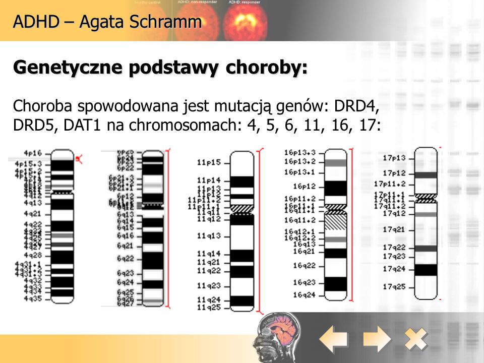 ADHD – Agata Schramm Genetyczne podstawy choroby: Choroba spowodowana jest mutacją genów: DRD4, DRD5, DAT1 na chromosomach: 4, 5, 6, 11, 16, 17: