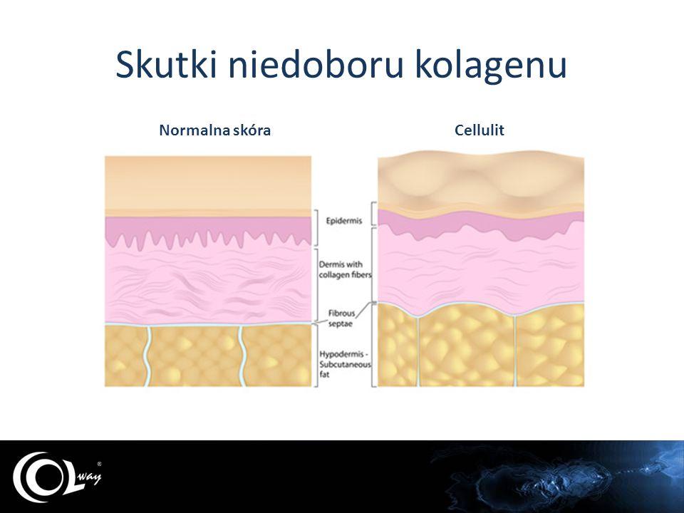 Skutki niedoboru kolagenu Młoda skóraStara skóra