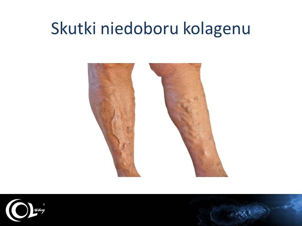 Skutki niedoboru kolagenu Normalna skóraCellulit