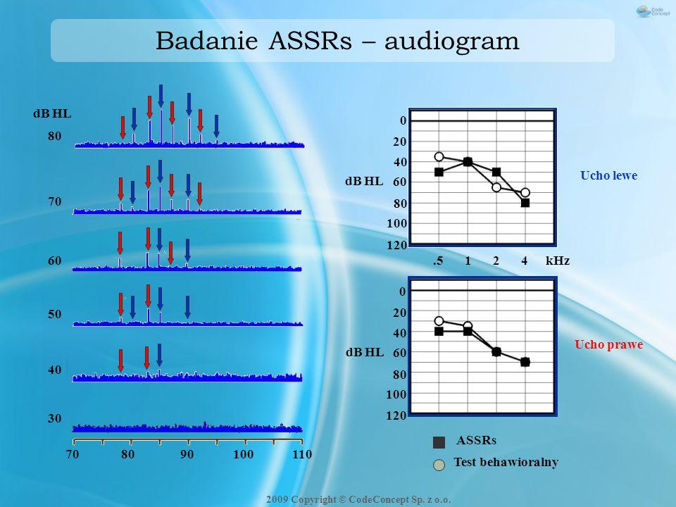 Badanie ASSRs – audiogram Test behawioralny ASSRs.5124kHz 120 0 20 40 60 80 100 120 0 20 40 60 80 100 dB HL Ucho lewe Ucho prawe 80 70 60 50 40 30 dB