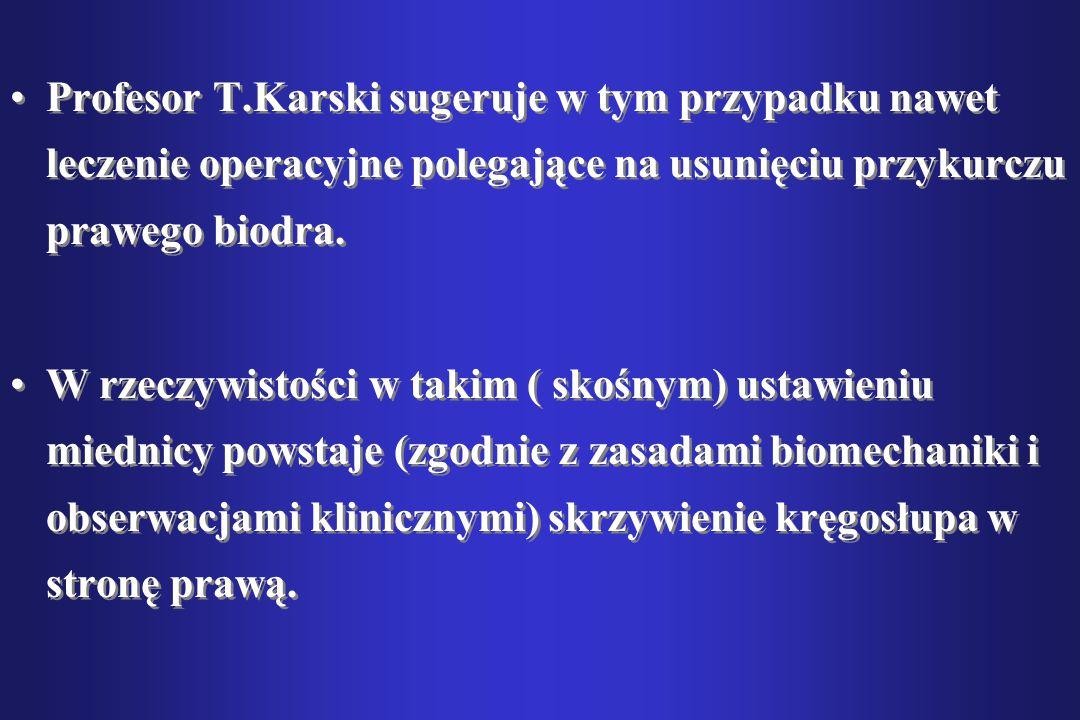 Profesor T.Karski sugeruje w tym przypadku nawet leczenie operacyjne polegające na usunięciu przykurczu prawego biodra. W rzeczywistości w takim ( sko