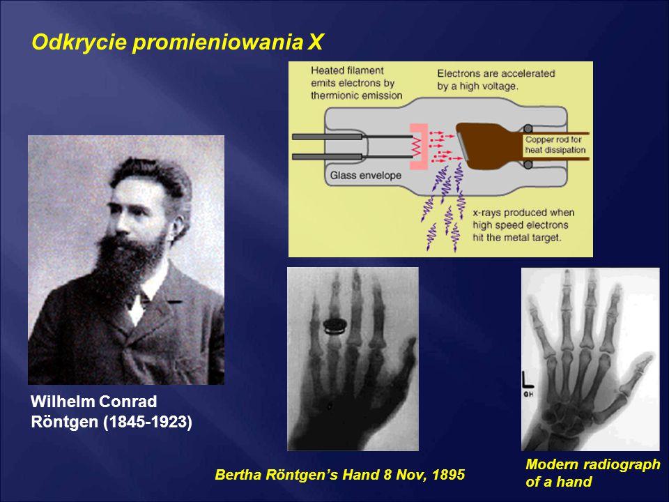 Wilhelm Conrad Röntgen (1845-1923) Bertha Röntgen's Hand 8 Nov, 1895 Modern radiograph of a hand Odkrycie promieniowania X
