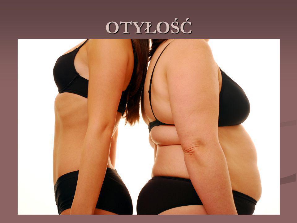 OTYŁOŚĆ - jest to patologiczne nagromadzenie tkanki tłuszczowej w organizmie, przekraczające jego fizjologiczne potrzeby i możliwości adaptacyjne, mogące prowadzić do niekorzystnych skutków dla zdrowia.