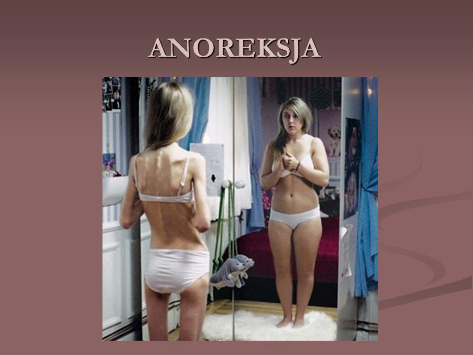 ANOREKSJA – zaburzenie odżywiania polegające na celowej utracie wagi wywołanej i podtrzymywanej przez osobę chorą.