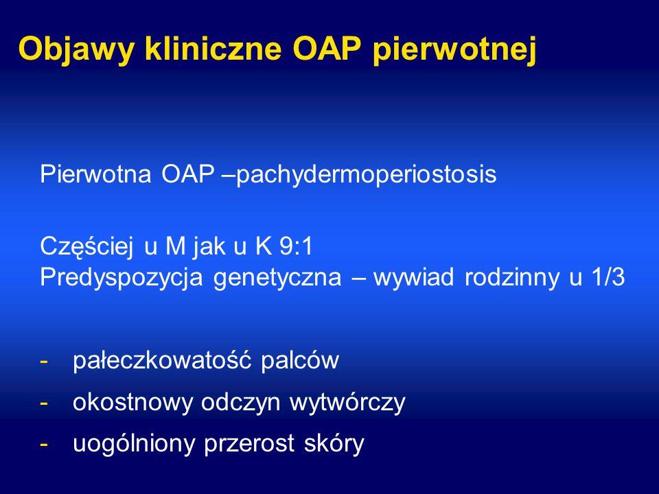 Objawy kliniczne OAP pierwotnej Pierwotna OAP –pachydermoperiostosis Częściej u M jak u K 9:1 Predyspozycja genetyczna – wywiad rodzinny u 1/3 -pałecz
