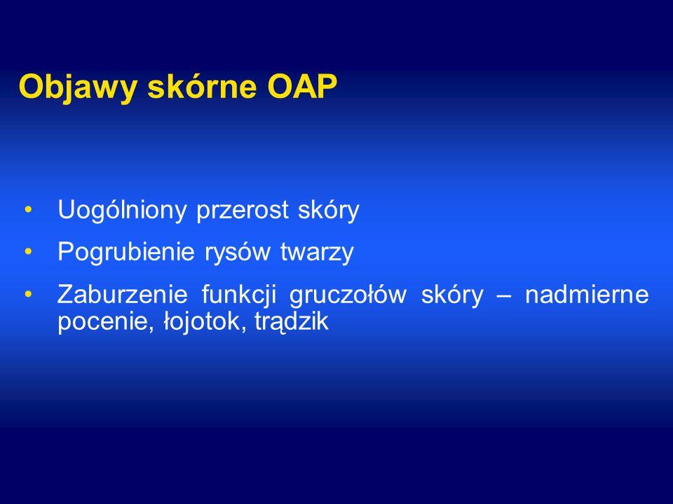 Objawy skórne OAP Uogólniony przerost skóry Pogrubienie rysów twarzy Zaburzenie funkcji gruczołów skóry – nadmierne pocenie, łojotok, trądzik