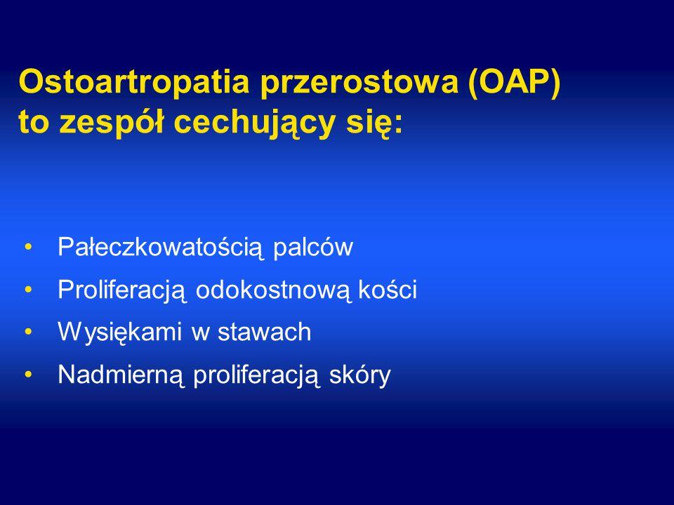 Ostoartropatia przerostowa (OAP) to zespół cechujący się: Pałeczkowatością palców Proliferacją odokostnową kości Wysiękami w stawach Nadmierną prolife